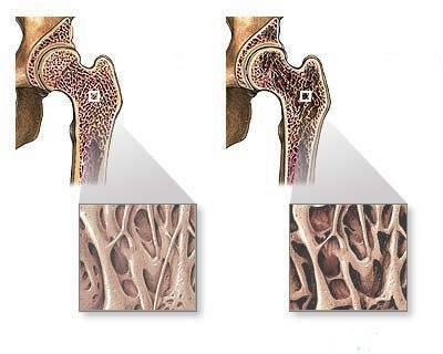 Остеопороз у детей: симптомы и лечение ювенильной формы патологии | заболевания | vpolozhenii.com