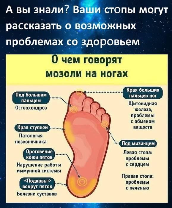 У ребенка болит пятка причины, лечение и профилактика