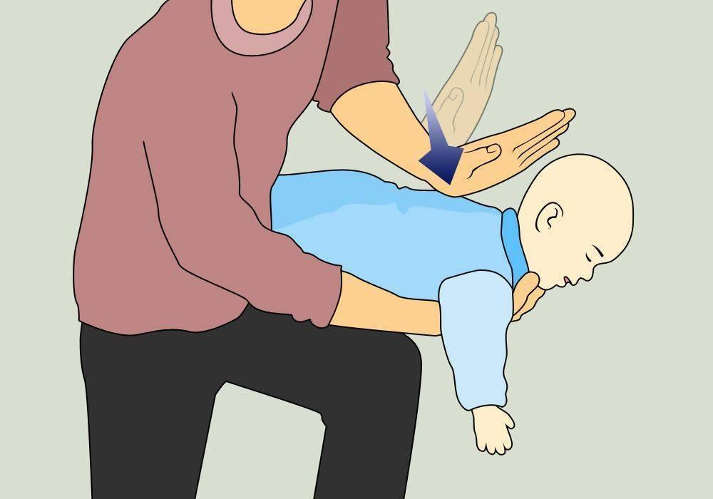 Что сделать с подавившимся грудничком: если поперхнулся молоком или слюной