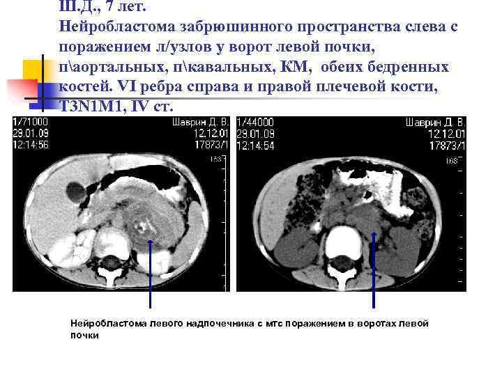 Нейробластома у детей: симптомы, диагностика и лечение, прогноз