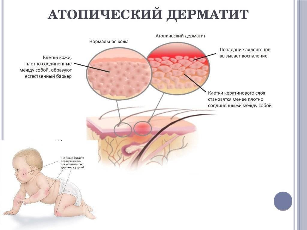Дерматит у детей: 120 фото и видео заболевания, методика его лечения и устранение причины болезни