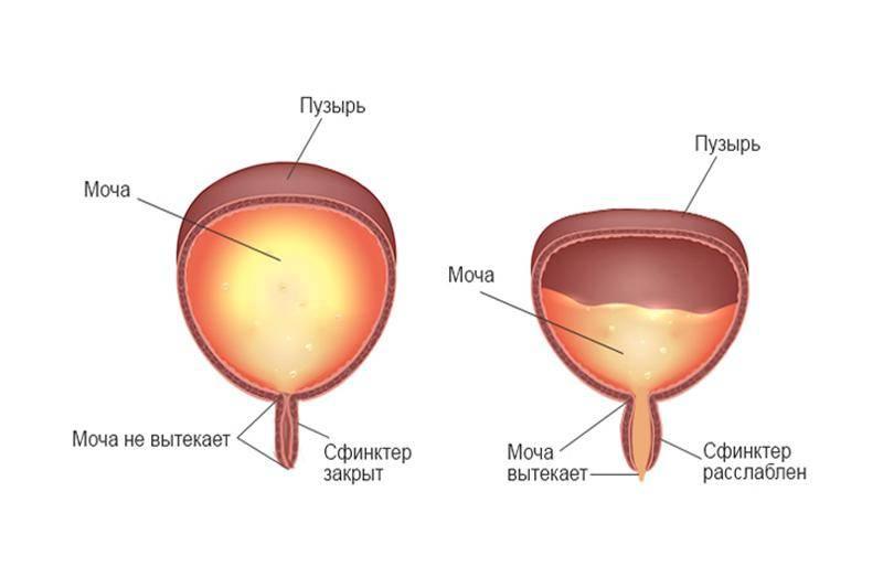 Нейрогенный мочевой пузырь у детей: причины, симптомы, методы лечения и прогноз