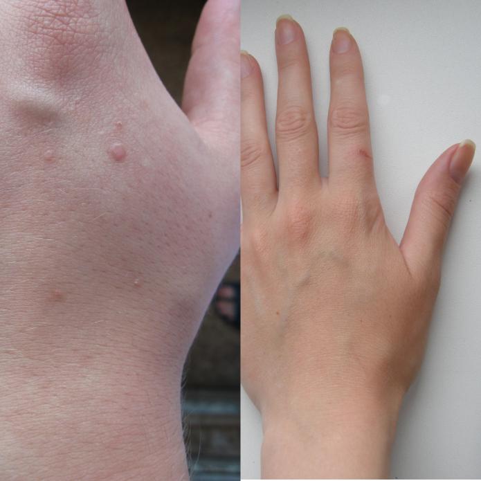 Бородавка на руке у ребенка, лечение как вывести чем лечить