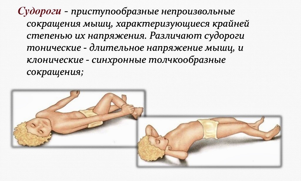 Судороги во сне у ребенка