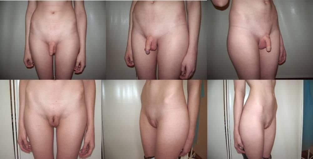 При ходьбе болит промежность при беременности | nogihelp.ru