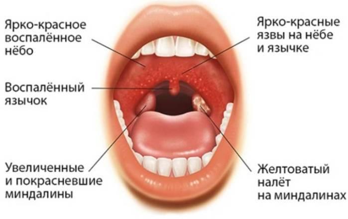 Причины гнойной ангины у детей, симптомы с фото и методы лечения дома