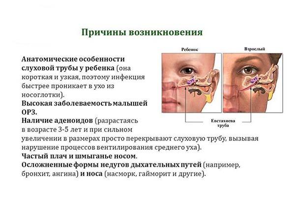 Симптомы и методы лечения острого катарального отита у детей