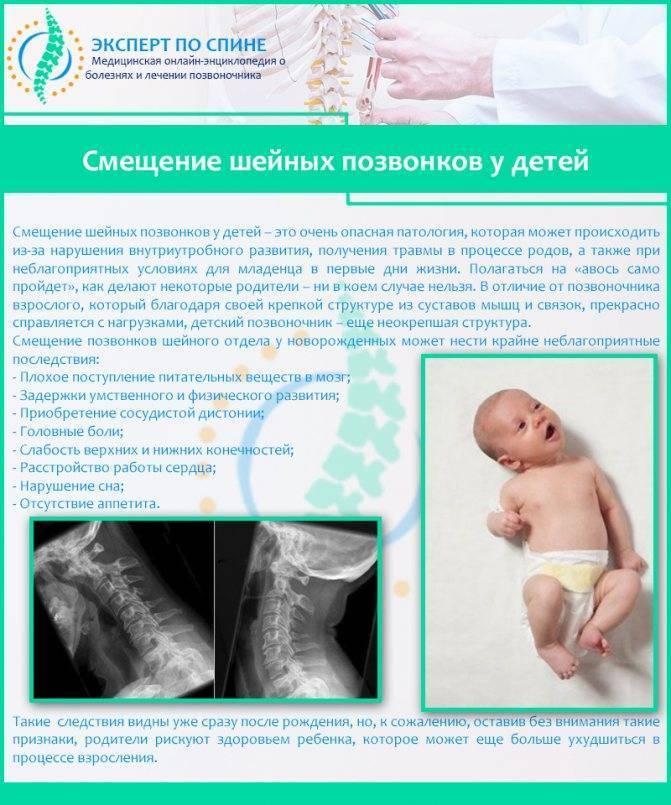 Родовая травма шейного отдела позвоночника новорожденного последствия