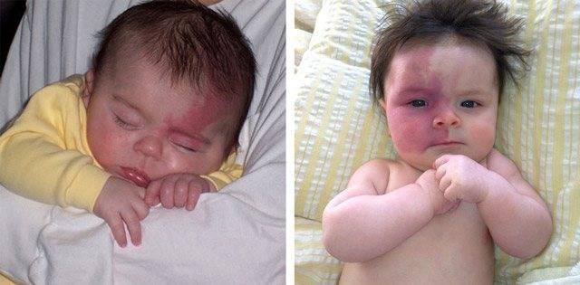 Причины и лечение геморрагической болезни новорожденных