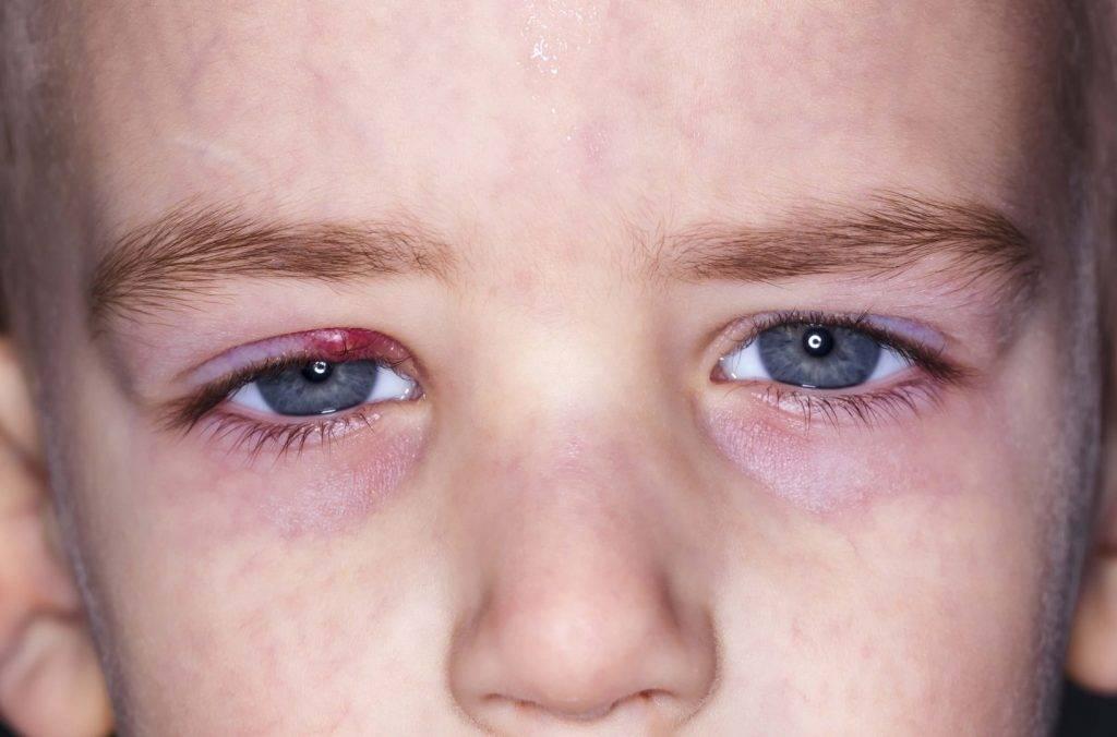 Симптомы и лечение аллергического конъюнктивита у детей
