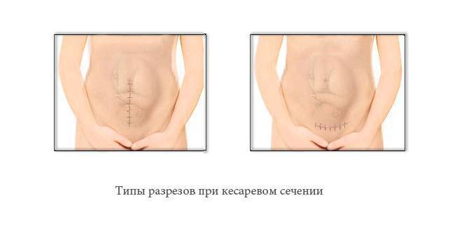 После кесарево болит желудок. почему болит шов после кесарева сечения и что нужно делать - здоровый живот