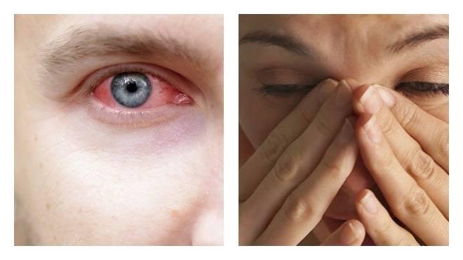Почему болят глазные яблоки при нажатии и что делать в данном случае