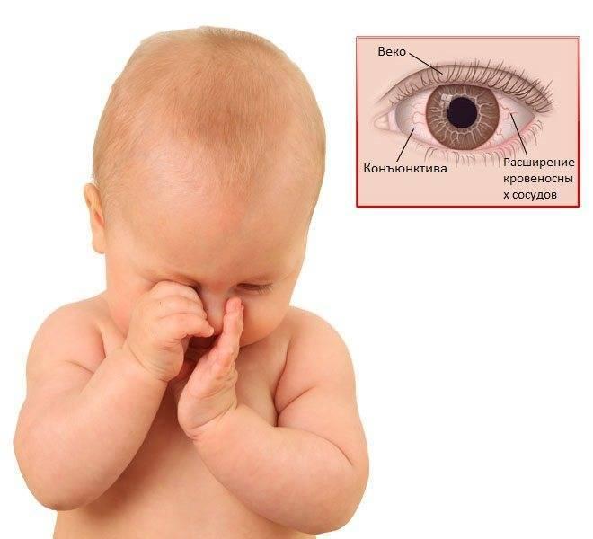 Конъюнктивит у детей до года — причины, симптомы и лечение