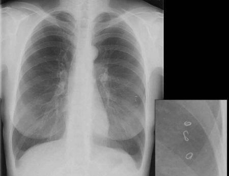 Как распознать глистную инвазию – кашель и другие симптомы