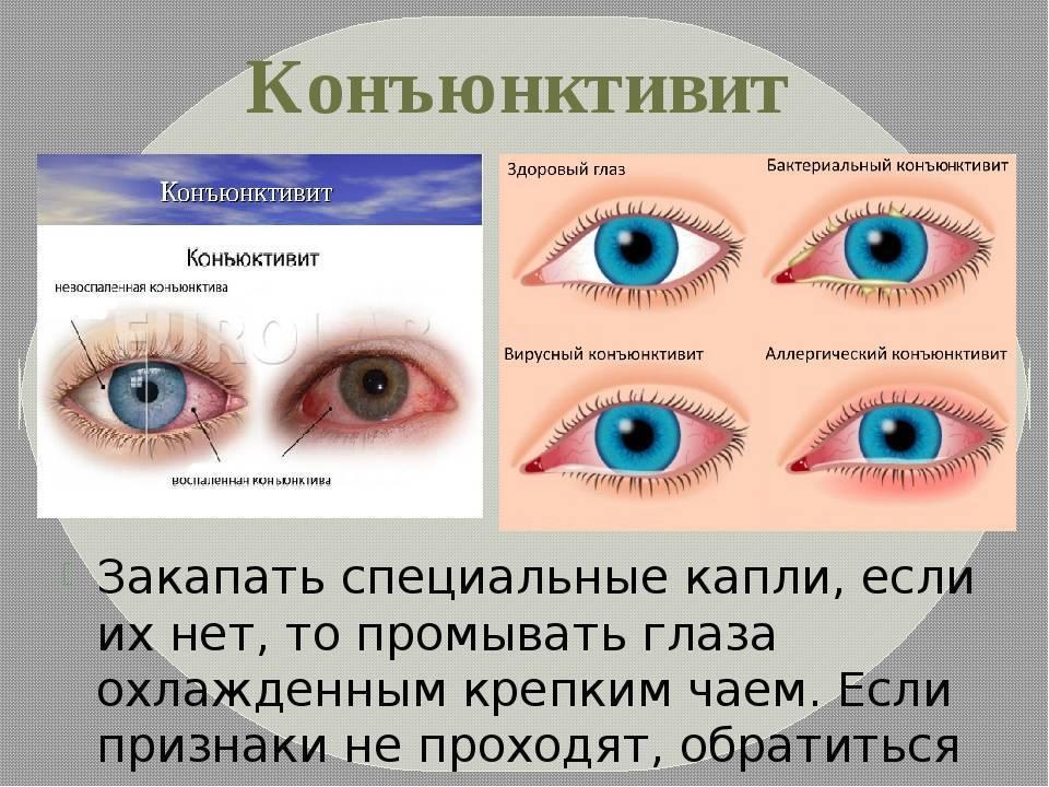 Гноятся глаза – чем лечить в домашних условиях