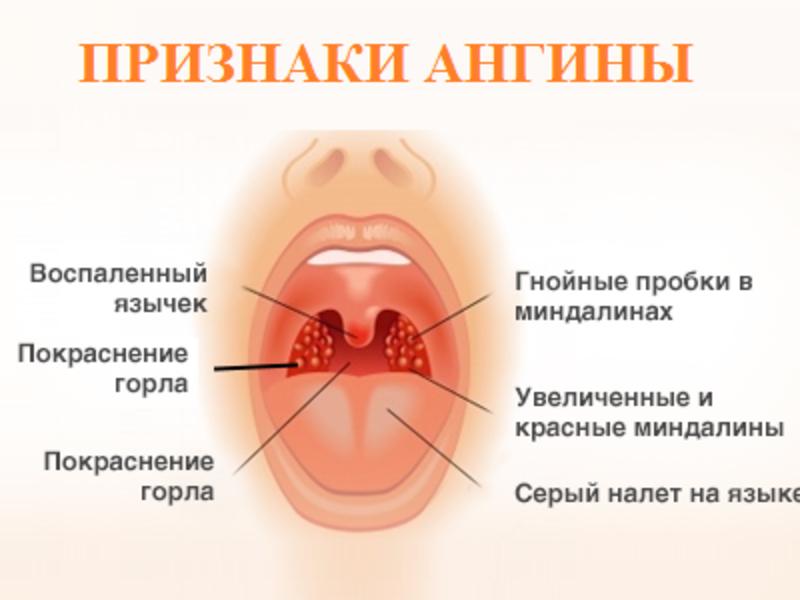 В горле у ребенка белые язвочки