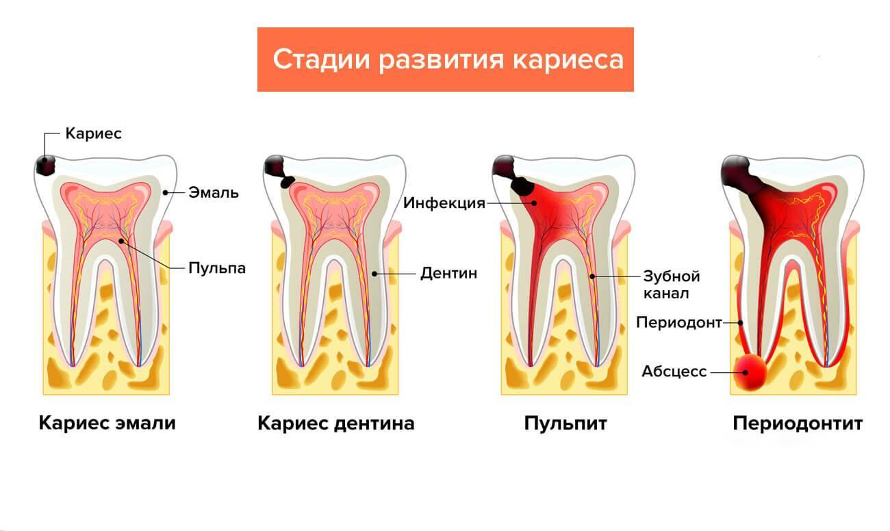 Пульпит молочных зубов и методы его лечения