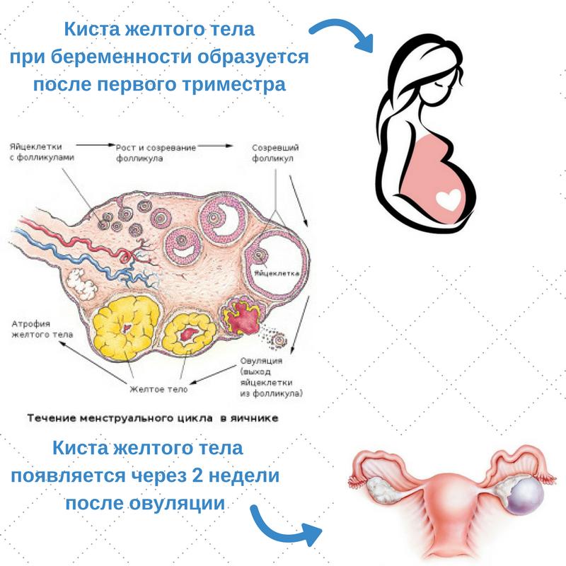 Эндометриоидная киста яичника и беременность: можно ли забеременеть с данной патологией?