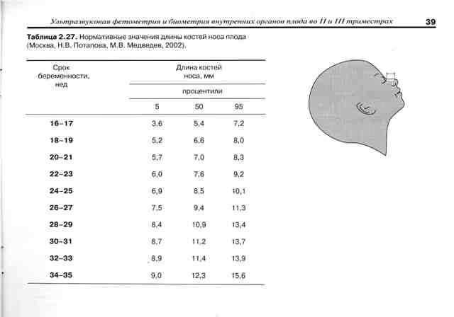 Гипоплазия носовой кости у плода симптомы, лечение, описание