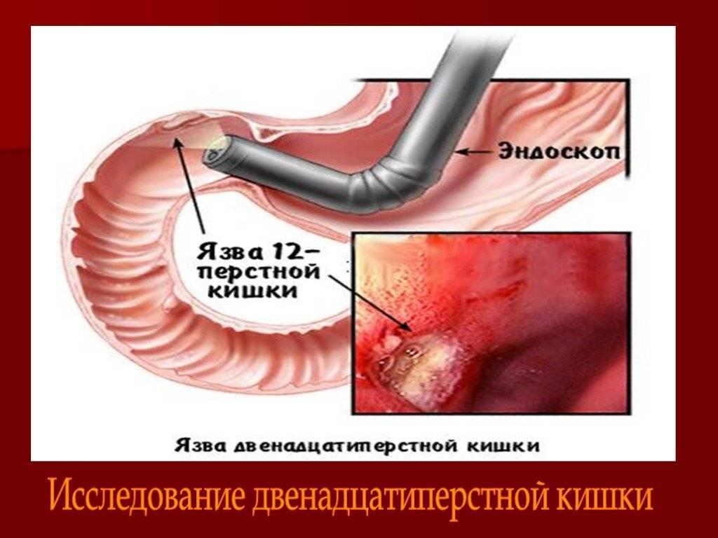 Язвенная болезнь желудка и двенадцатиперстной кишки лечение у детей