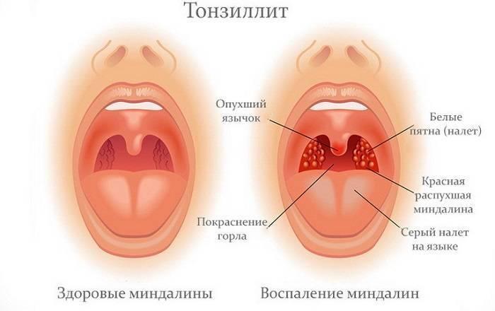 Боли в горле у ребенка и их лечение