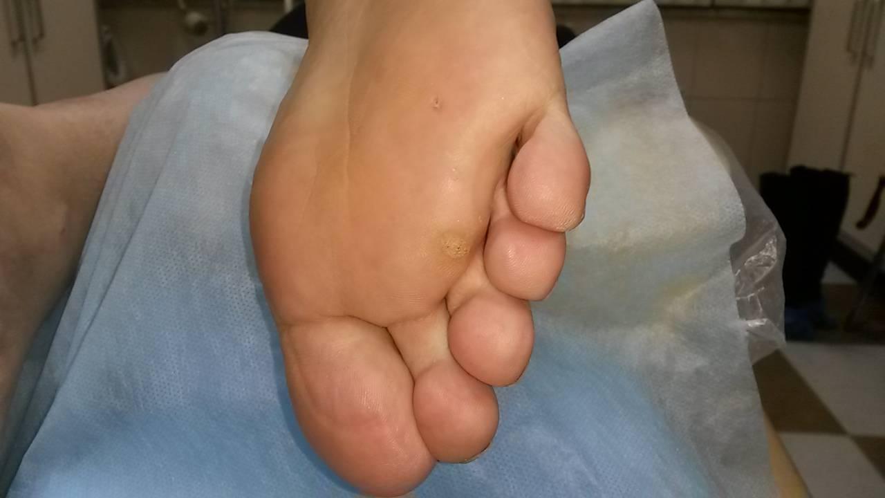 Выявление и лечение бородавок на пальцах ног