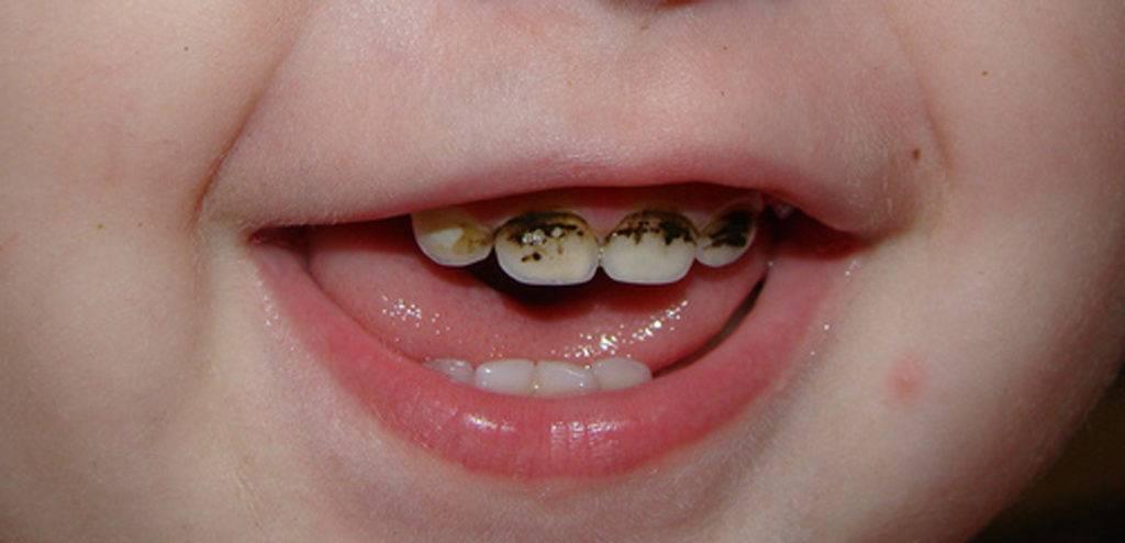 Серебрение зубов у детей - преимущества и недостатки метода | za-rozhdenie.ru