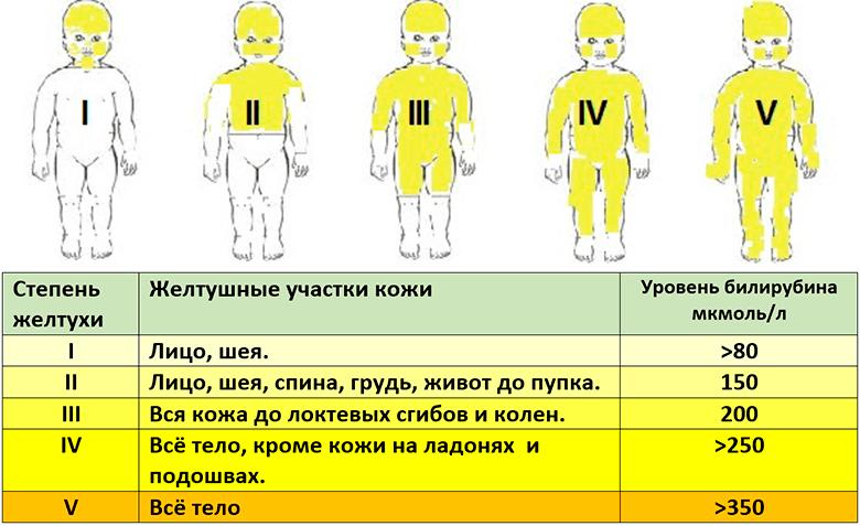 Симптомы целиакии у детей в возрасте от нескольких месяцев до 7 лет