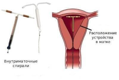 Когда можно ставить спираль после родов: через сколько, какую лучше