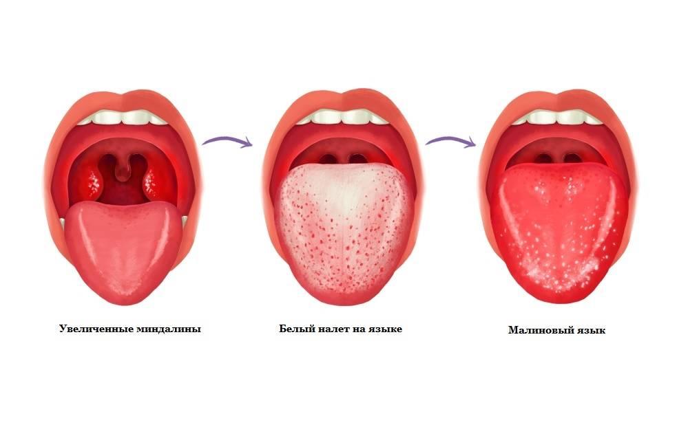 Внешний вид и параметры здоровых миндалин