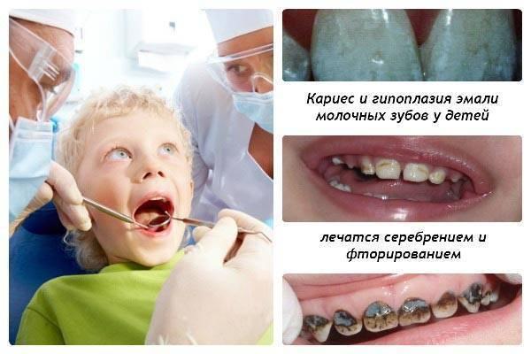 Серебрение зубов у детей - преимущества и недостатки метода