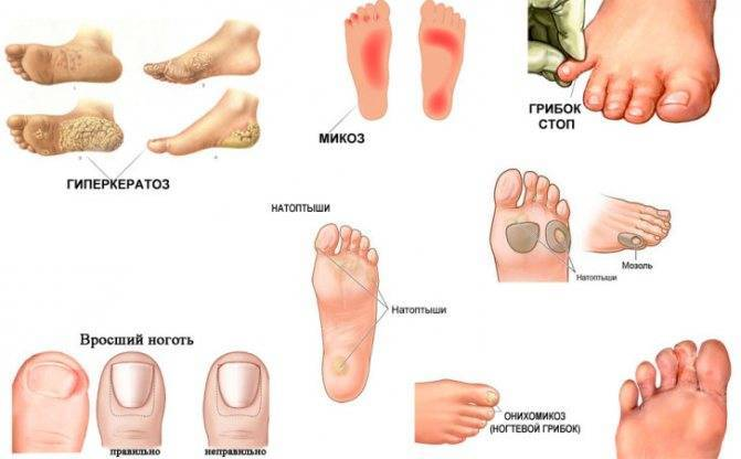 Грибок у ребенка: причины и симптомы, особенности лечения, фото
