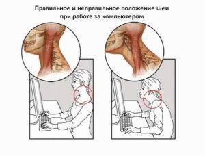 Болит шея с левой стороны сзади не могу повернуть голову причины