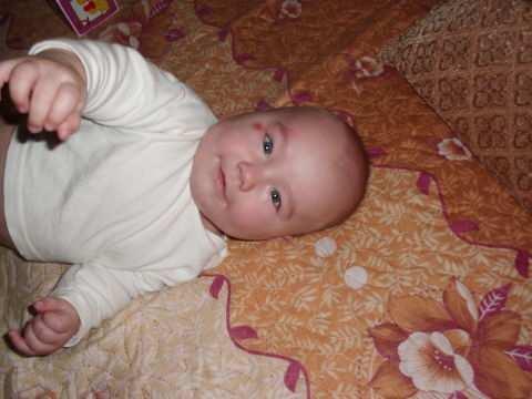 Ребенок упал с дивана, кровати вниз головой и ударился | комаровский