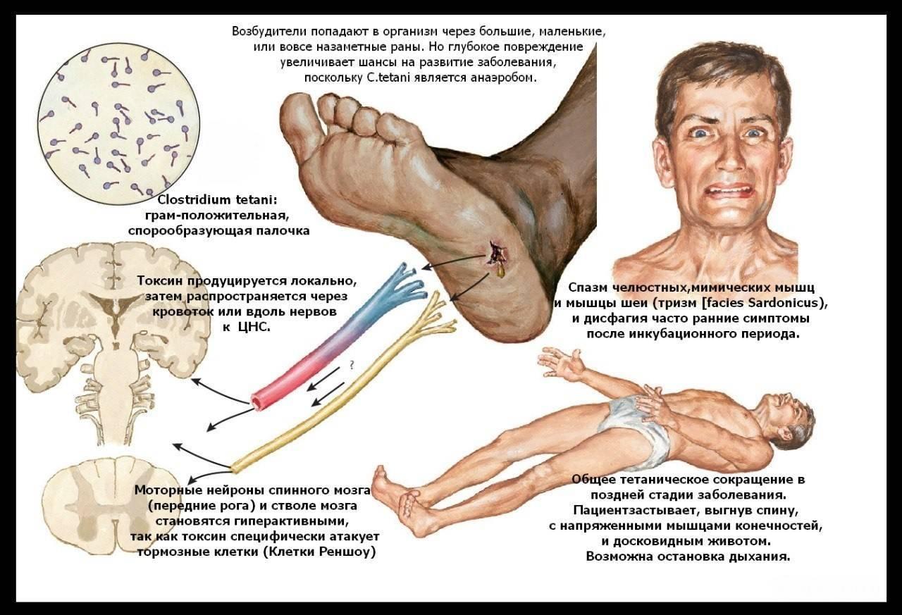 Симптомы столбняка у ребенка - как быстро начинают проявляться первые признаки после пореза? | заболевания | vpolozhenii.com