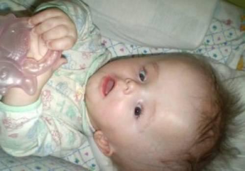 Гидроцефалия головного мозга у детей: признаки водянки, последствия и лечение новорожденных