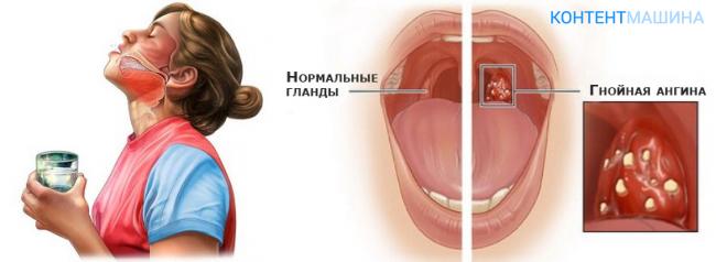 Белый налет на горле у ребенка лечение - лечим сами
