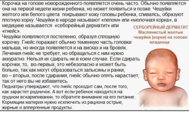 Себорейный дерматит у грудничка и новорождённого младенца