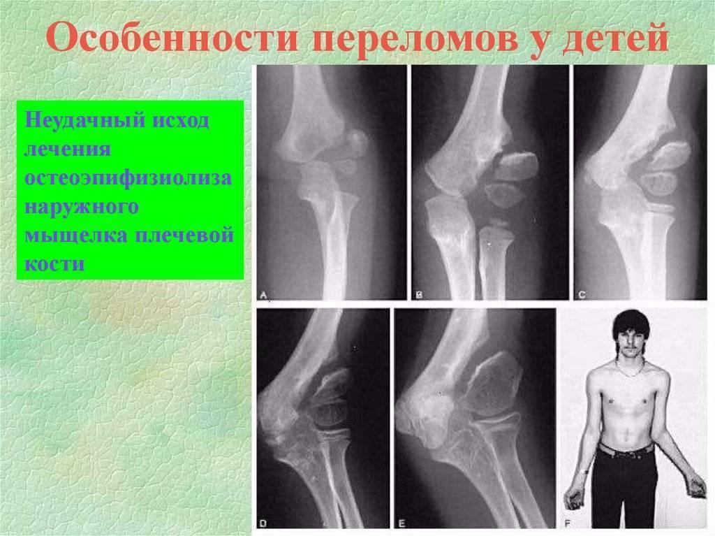Переломы у детей                        первая помощь и лечение
