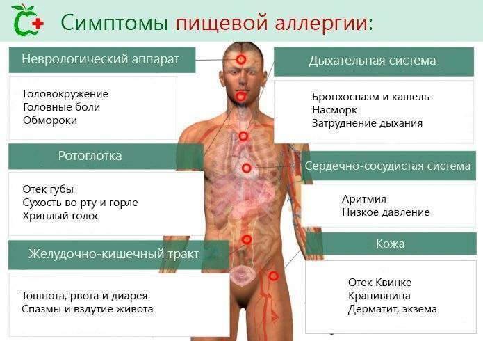 Температура при аллергии у ребёнка