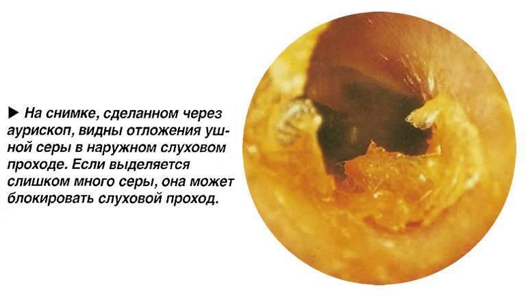 У ребенка в одном ухе сера темнее. практикум для мам: устраняем лишнюю серу в ушах - инфо по медицине