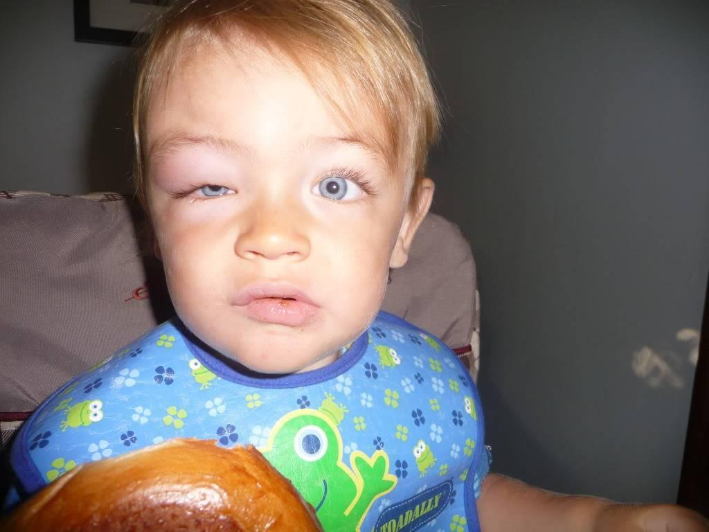 Ребенка укусила мошка в глаз: чем снять отек и как лечить опухоль?