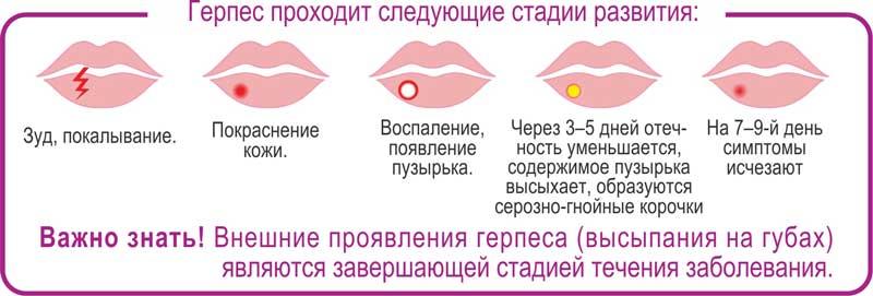Опоясывающий герпес на лице: фото на подбородке, щеке, на лбу у ребенка, бороде и коже лица