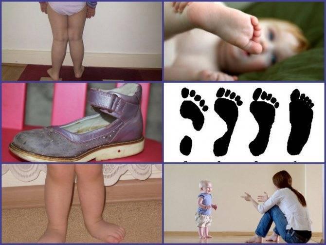 Варусная деформация стопы: причины и лечение (упражнения, массаж)