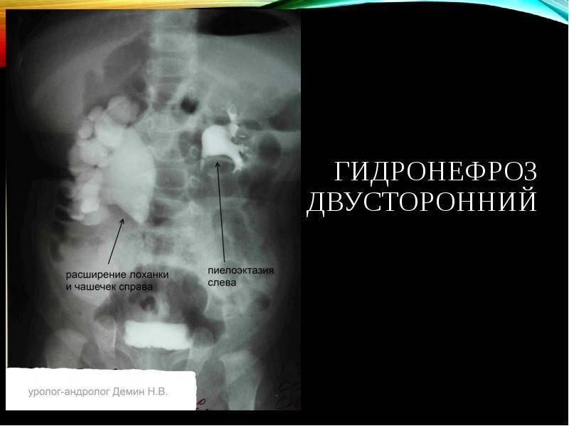Двухсторонняя пиелоэктазия почек - фото, причины, лечение и осложнения