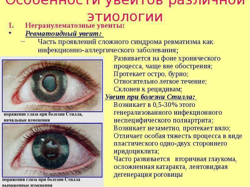 Заболевания глаз у детей - своевременная диагностика поможет избежать серьезных последствий