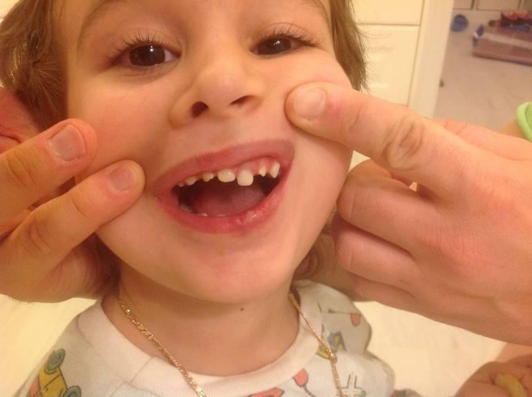 Ушиб молочного зуба — последствия и лечение - vzubkah.com