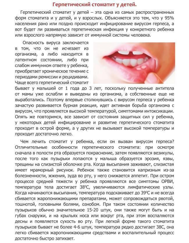 Вирусный стоматит у детей — причины, симптомы, осложнения и методы лечения