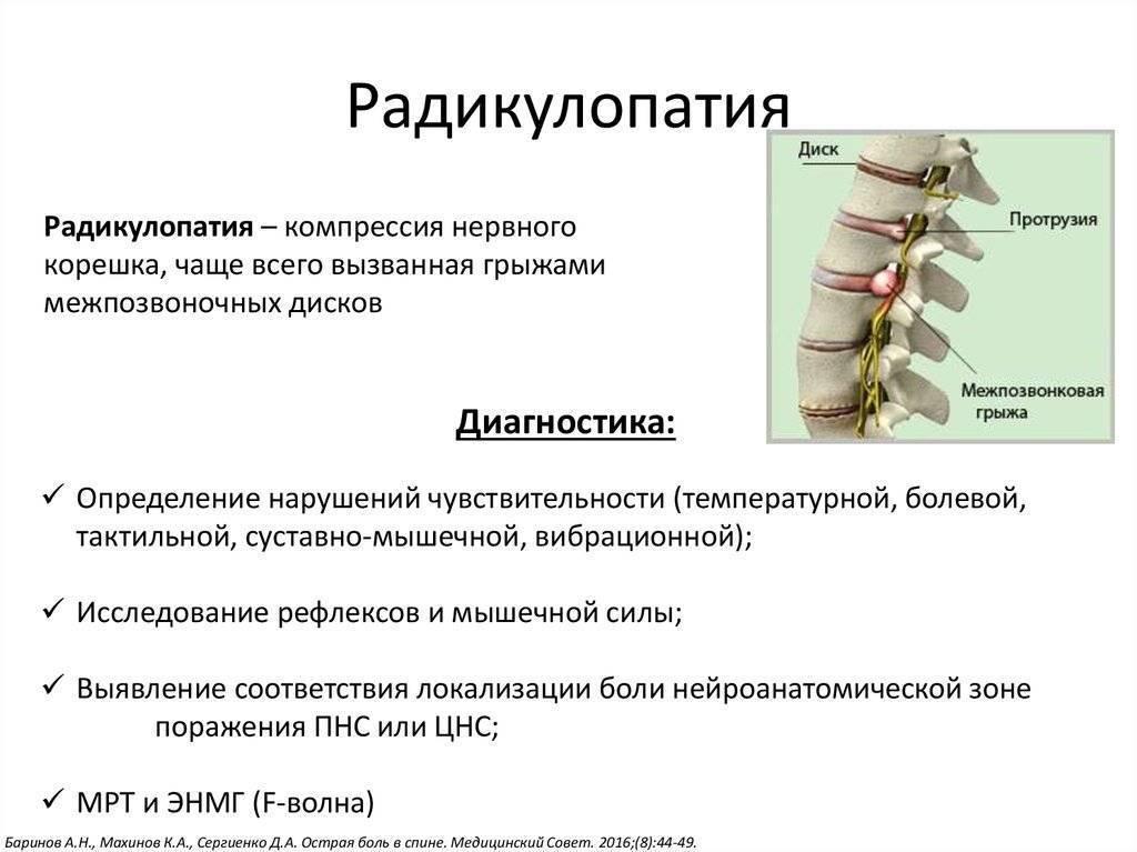 Остеохондроз крестцового отдела: симптомы, причины, стадии