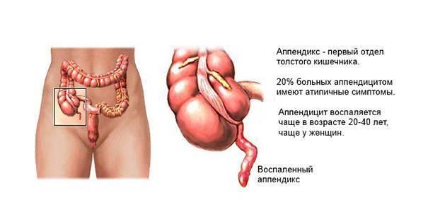 Аппендицит – симптомы у взрослых, признаки, причины